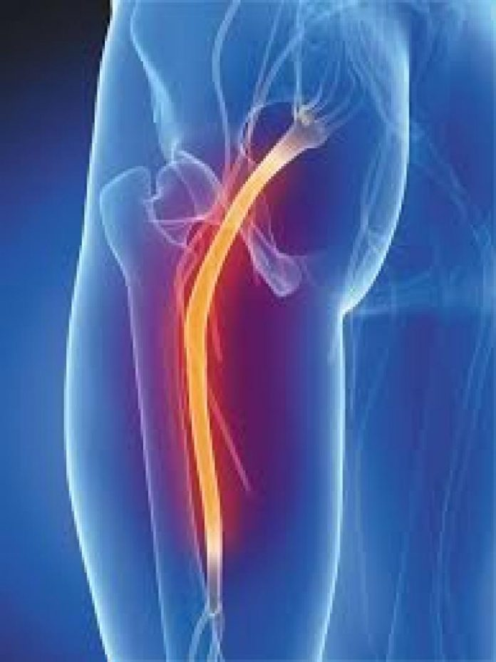 The Truth About Sciatica The Mint Hill Times